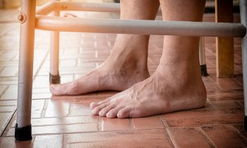 Common Causes and Treatments for Foot Pain in Seniors